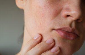 cara merwat kulit sensitif